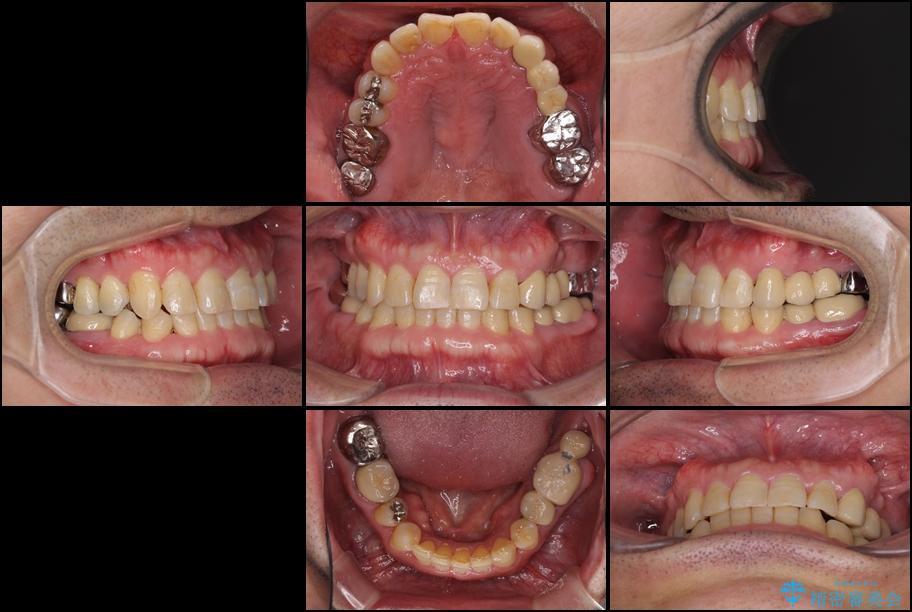 インビザラインliteによる切端咬合の歯列矯正 治療例 治療後画像