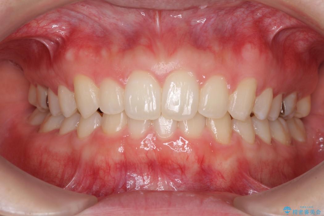 上の前歯の出っ歯と隙間インビザライン矯正 治療例 アフター