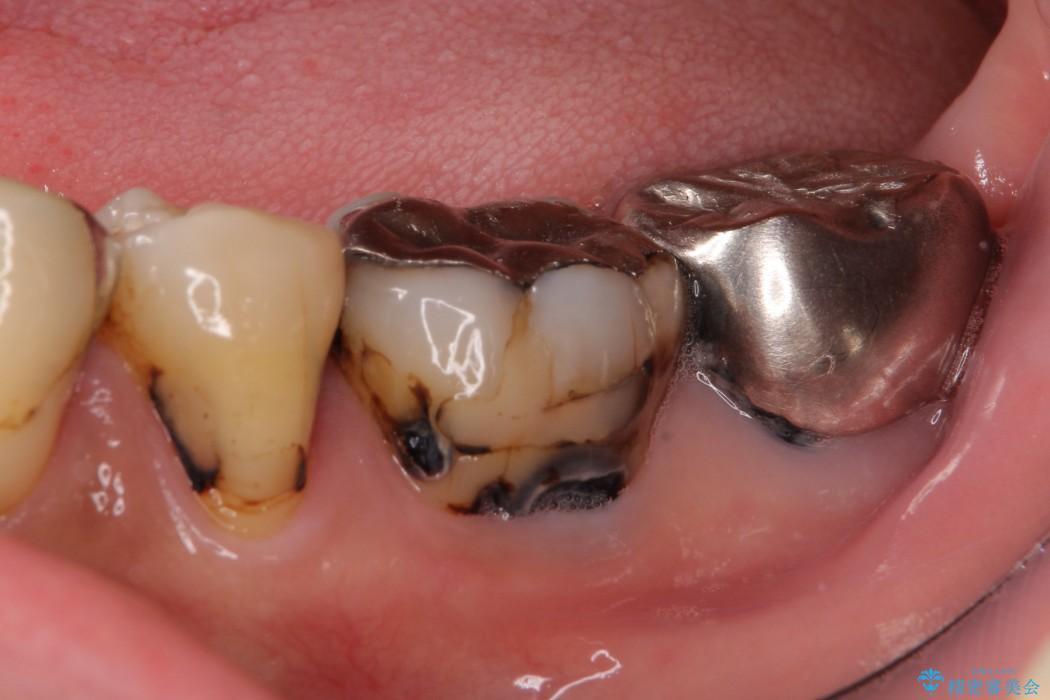 奥歯のオールセラミック 治療例 ビフォー