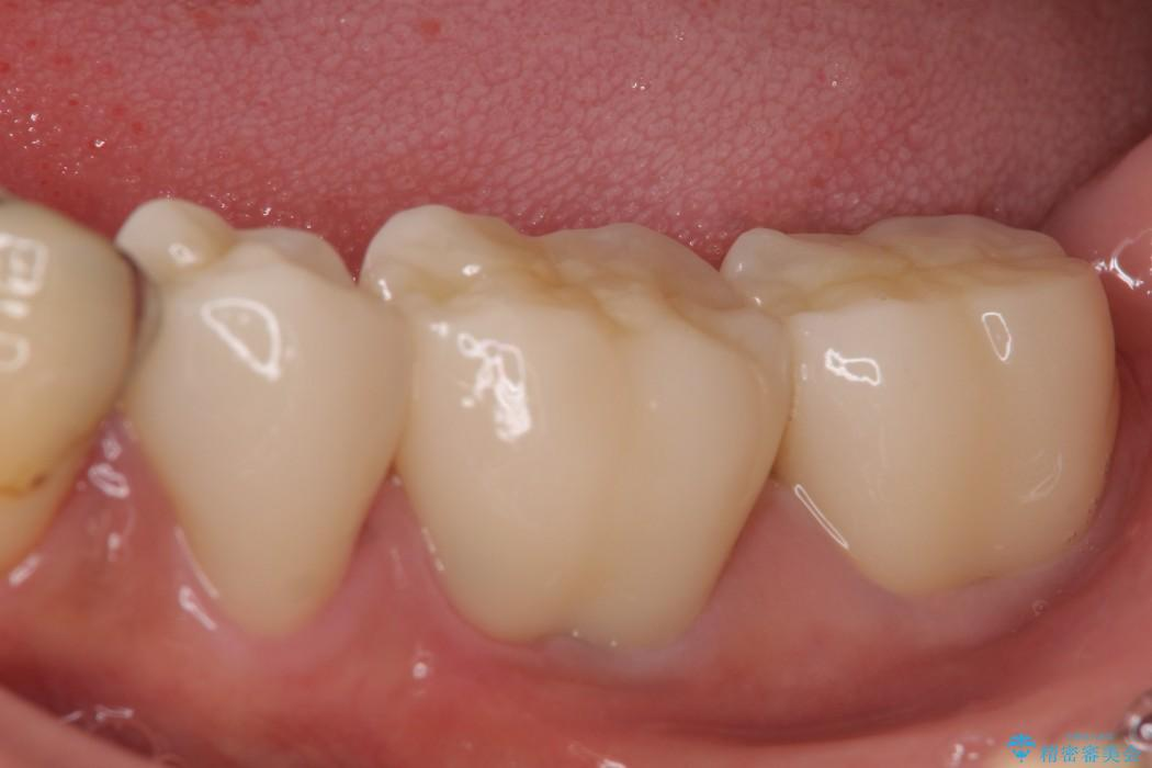 奥歯のオールセラミック 治療例 アフター