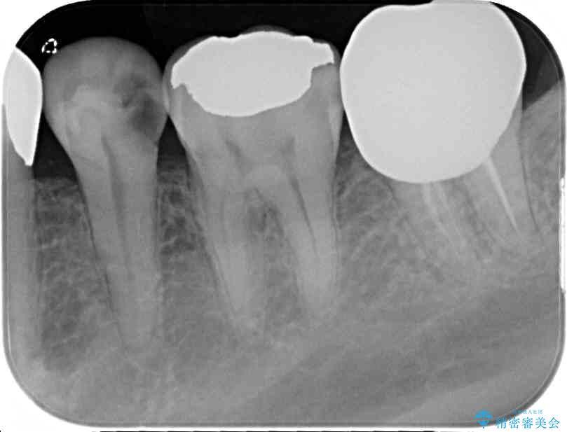 奥歯のオールセラミック 治療例 治療前画像