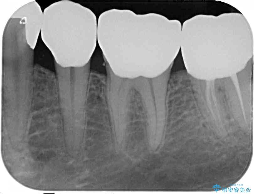 奥歯のオールセラミック 治療例 治療後画像