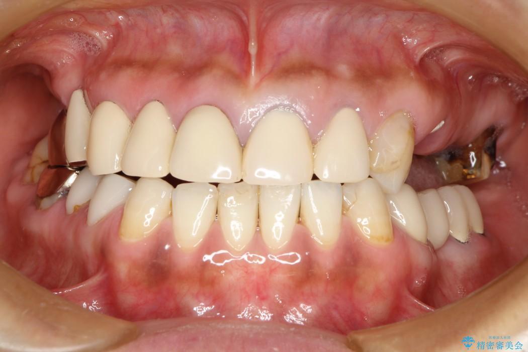 奥歯で噛めるようになったインプラント治療 ビフォー