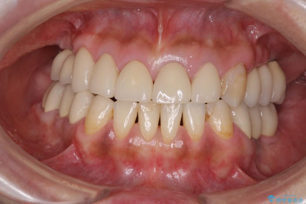 奥歯で噛めるようになったインプラント治療 アフター