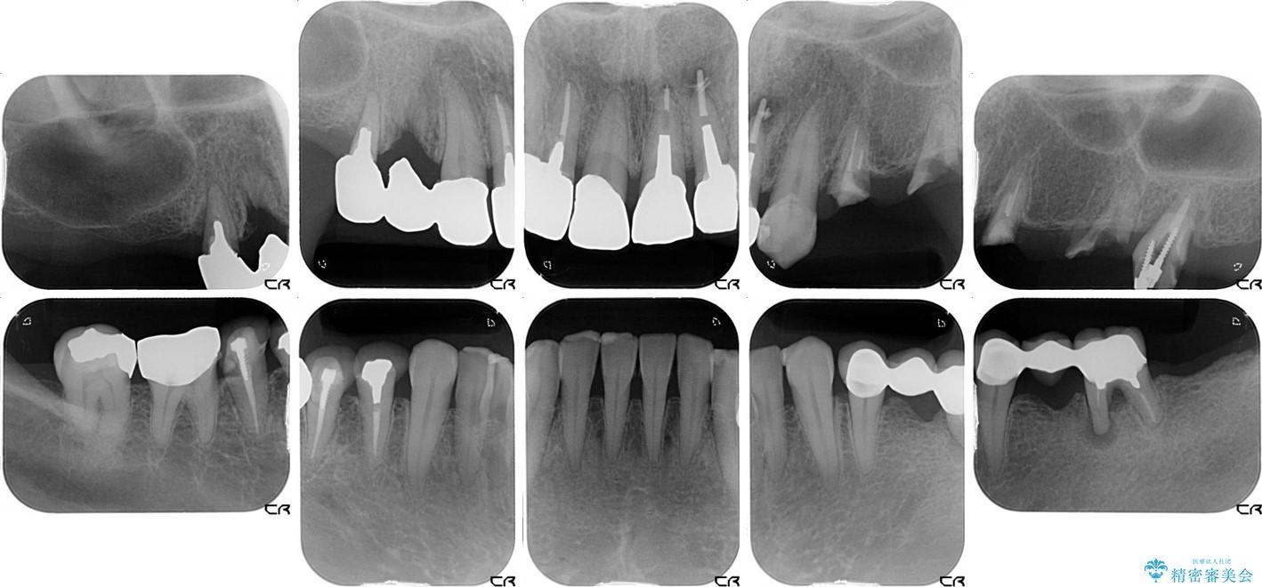 奥歯で噛めるようになったインプラント治療 治療前画像