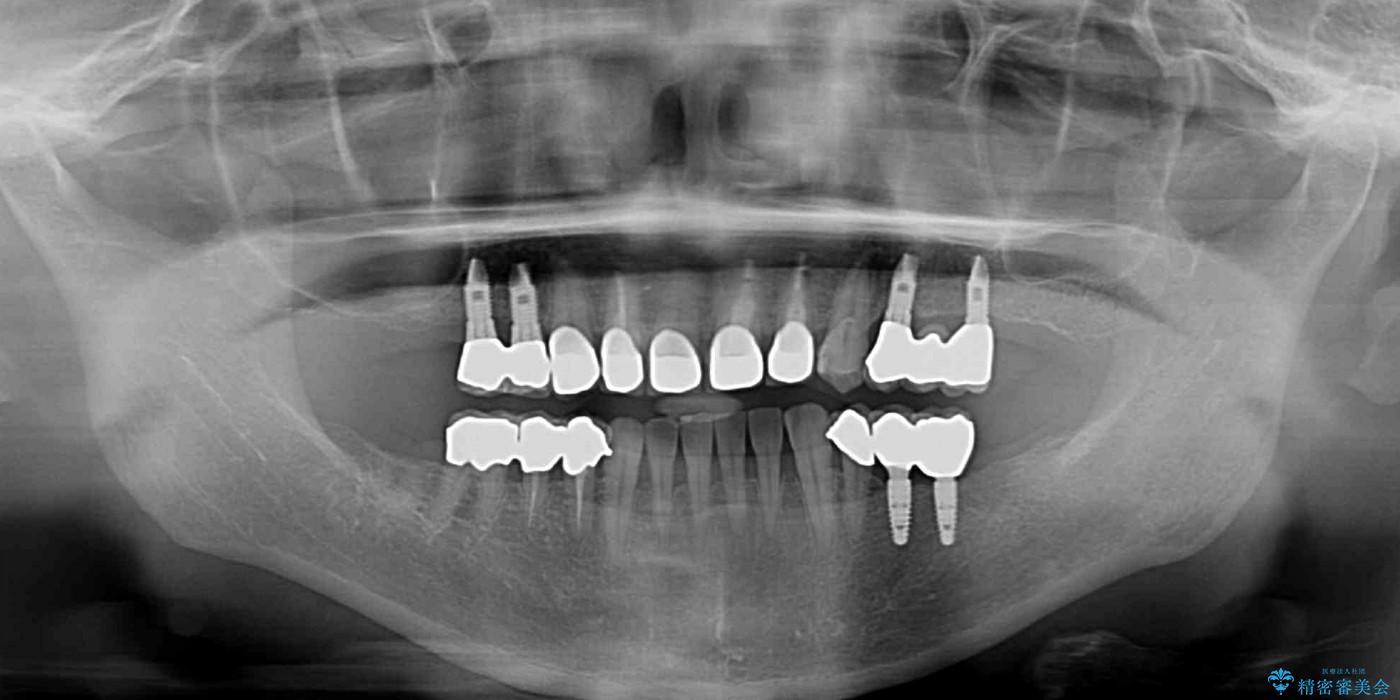奥歯で噛めるようになったインプラント治療 治療後画像