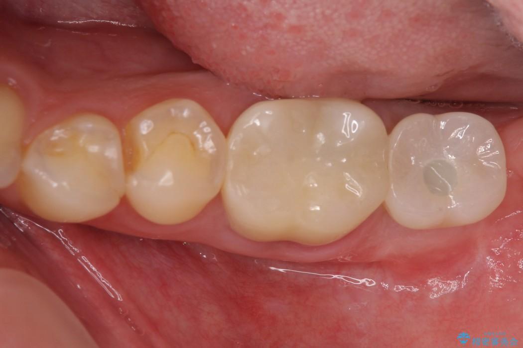奥歯のストローマン・インプラント 治療例 アフター