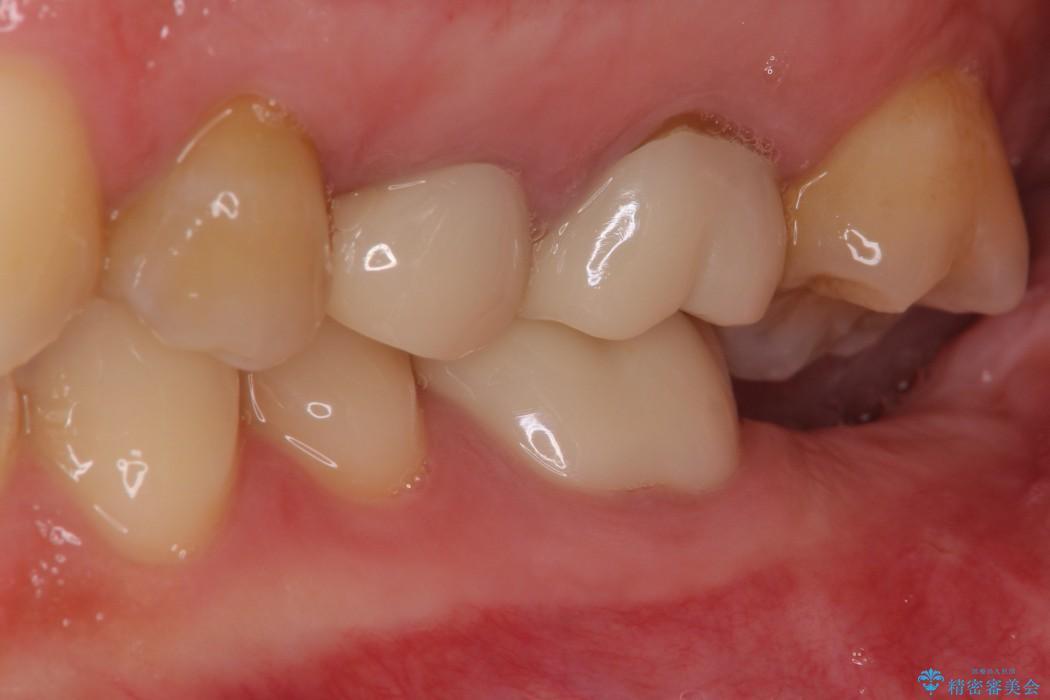 奥歯のストローマン・インプラント 治療例 治療後画像