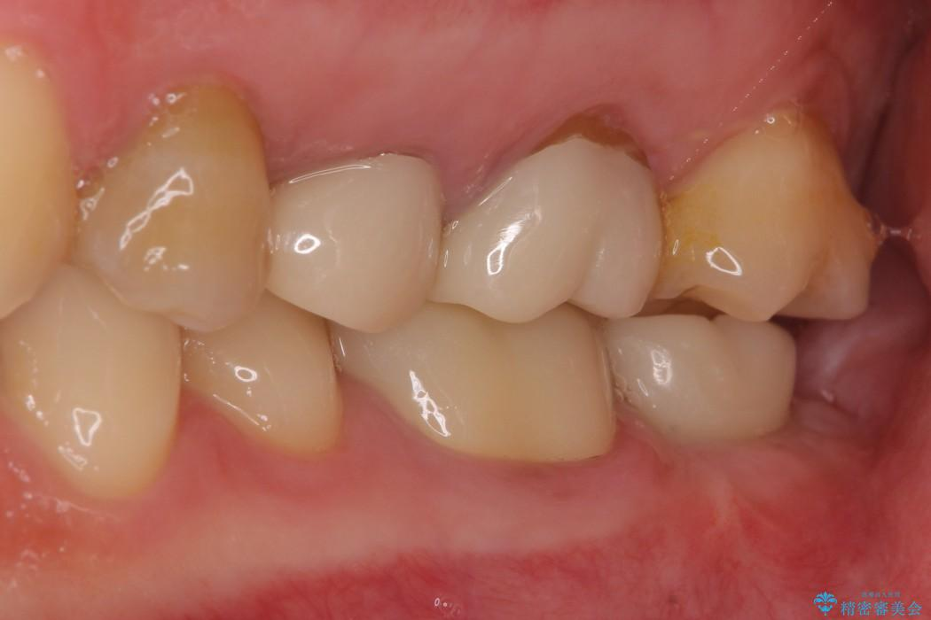 奥歯のストローマン・インプラント 治療例 治療前画像