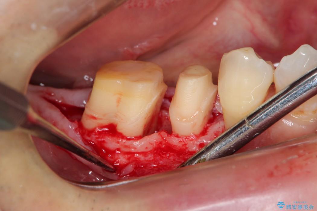 歯周病が原因で失われた奥歯の骨の再生治療 ビフォー