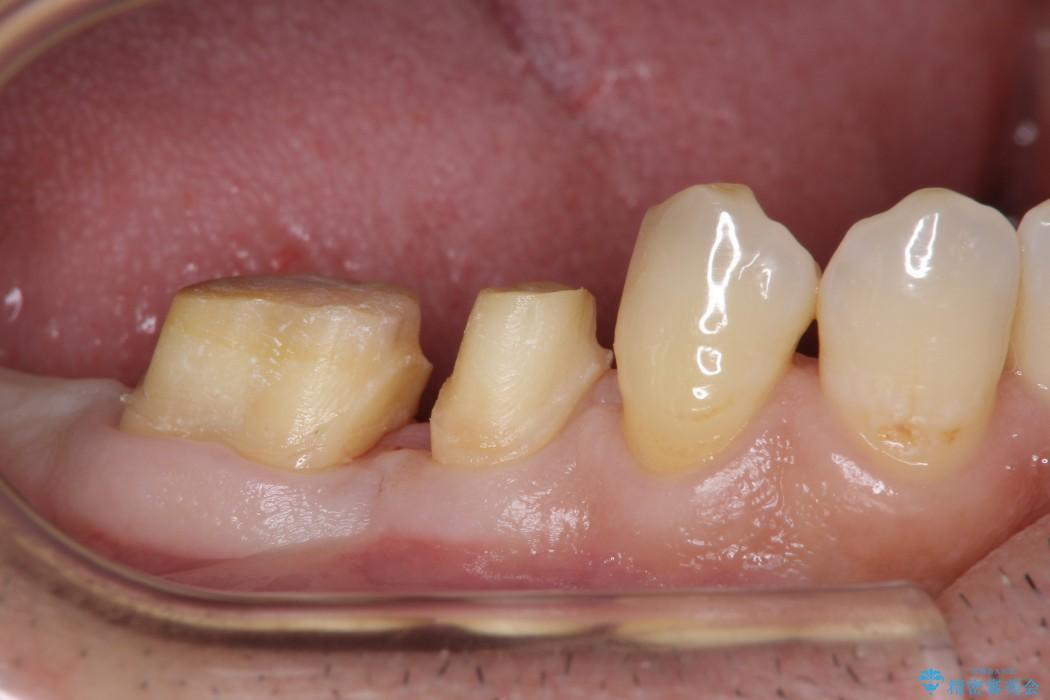 歯周病が原因で失われた奥歯の骨の再生治療 治療後画像