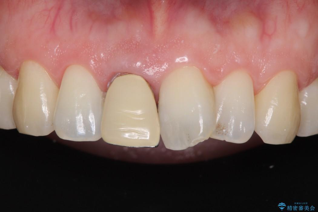 前歯のねじれと変色のオールセラミック 治療例 治療前