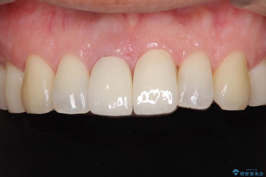 前歯のねじれと変色のオールセラミック 治療例 アフター