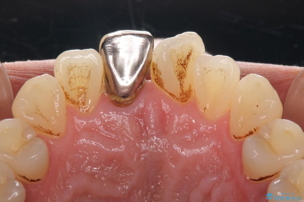 前歯のねじれと変色のオールセラミック 治療例 治療前画像