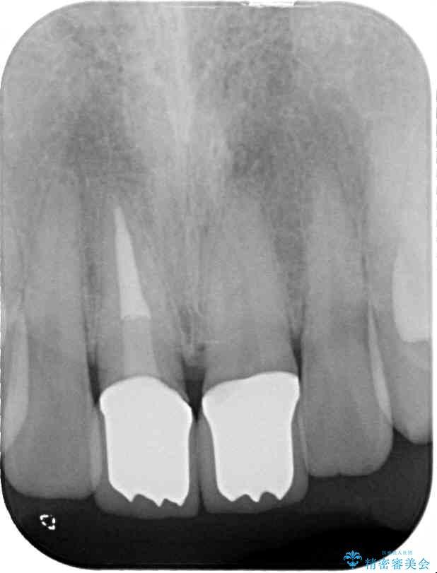 前歯のねじれと変色のオールセラミック 治療例 治療後画像