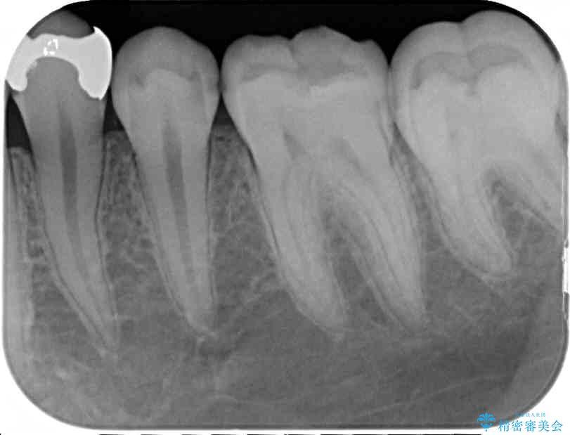 銀歯と虫歯のセラミックインレー 治療例 治療前画像