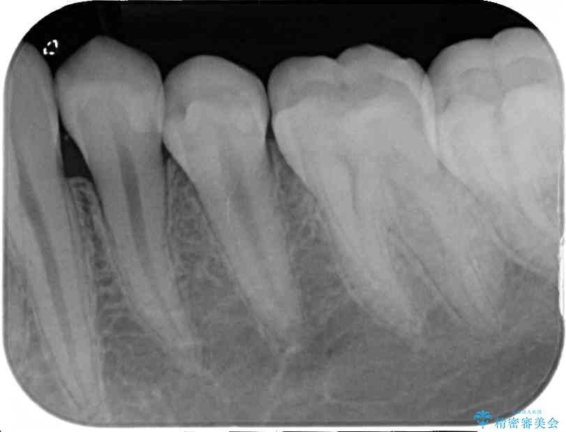 銀歯と虫歯のセラミックインレー 治療例 治療後画像