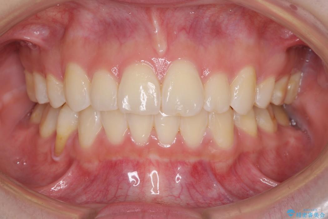 叢生(でこぼこ)と出っ歯のワイヤー矯正 治療例 アフター