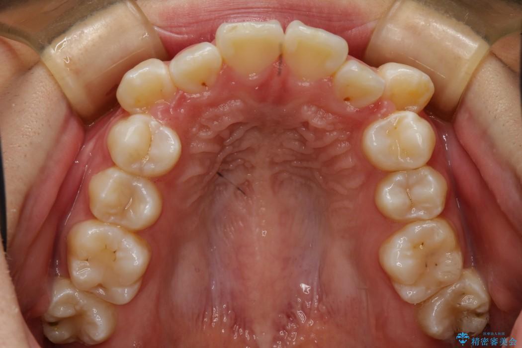 叢生(でこぼこ)と出っ歯のワイヤー矯正 治療例 治療前画像