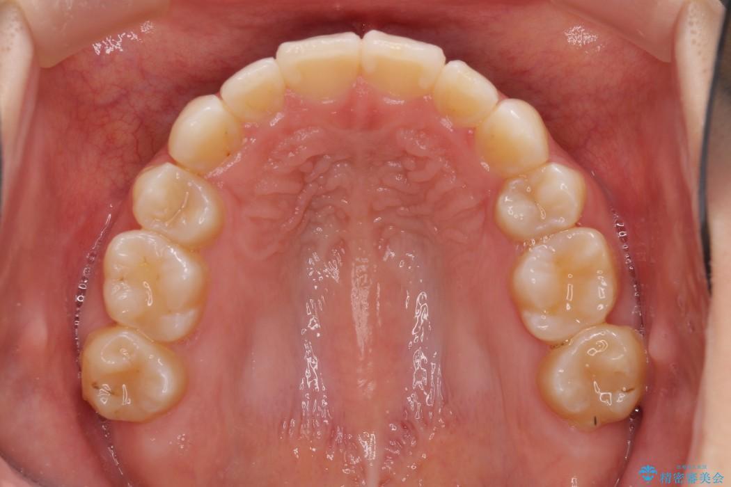 叢生(でこぼこ)と出っ歯のワイヤー矯正 治療例 治療後画像