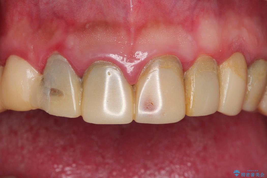 全顎の総合歯科治療 治療例 ビフォー