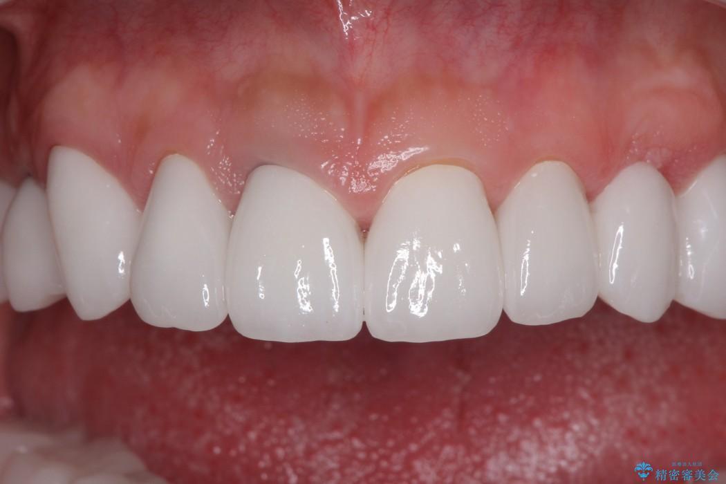 全顎の総合歯科治療 治療例 アフター