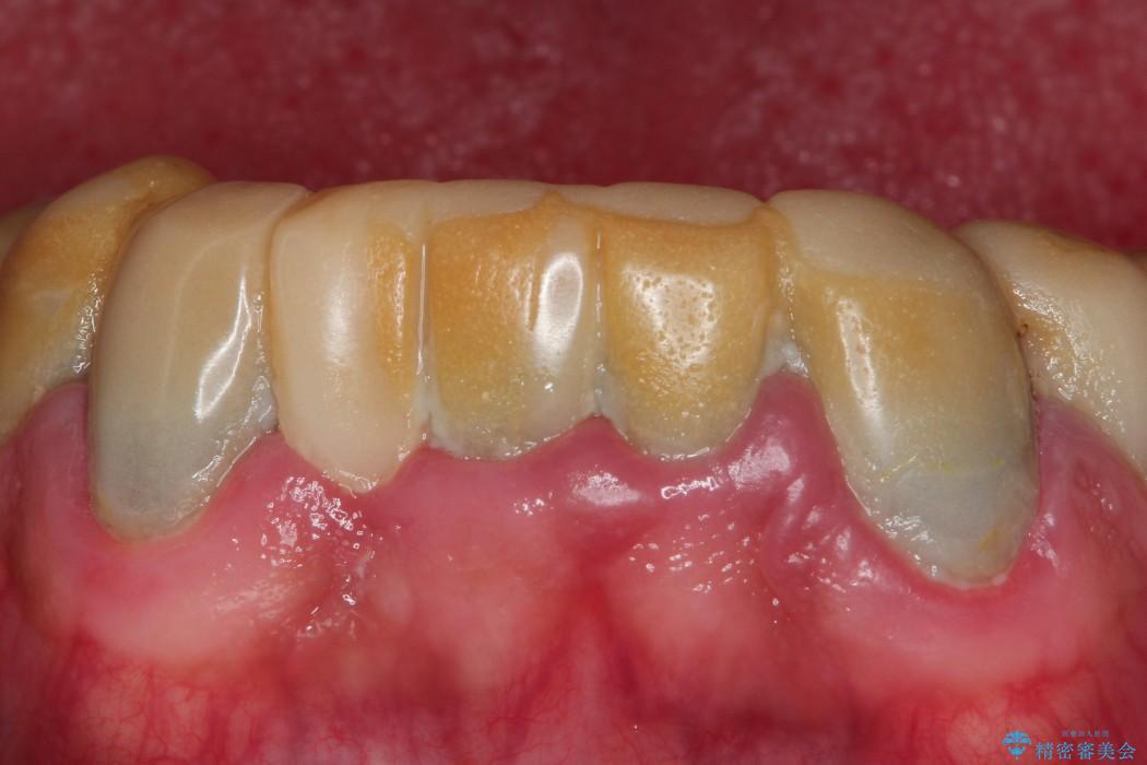 全顎の総合歯科治療 治療例 治療前画像