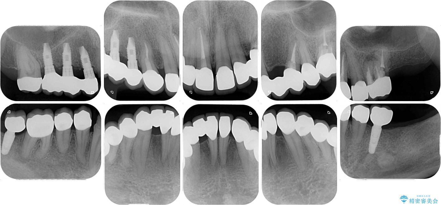 全顎の総合歯科治療 治療例 治療後画像