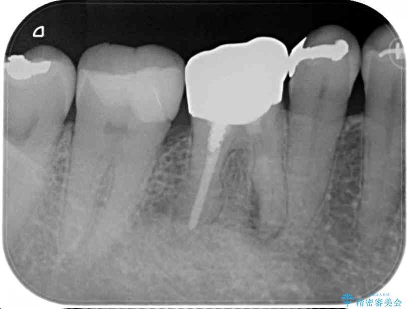 50代女性 奥歯のオールセラミック 治療例 治療前画像