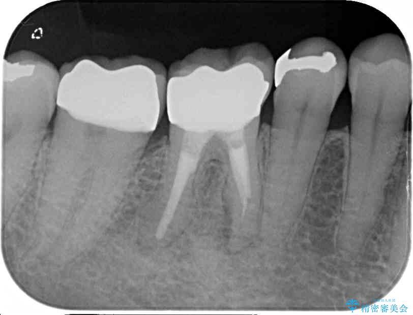 50代女性 奥歯のオールセラミック 治療例 治療後画像
