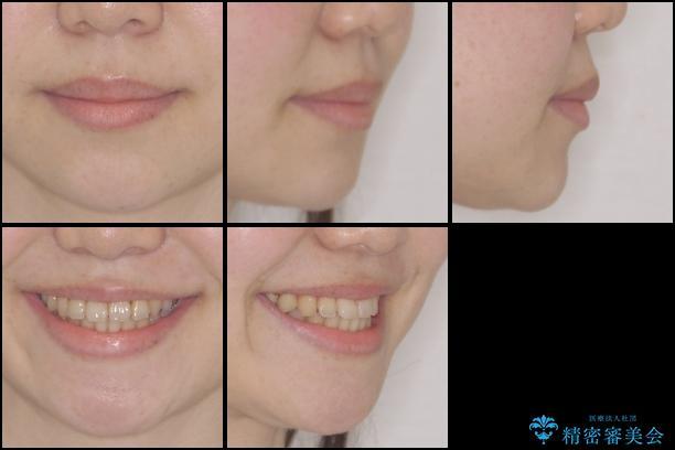 結婚式までに前歯を整えたい 上顎骨の拡大を併用した抜歯矯正 治療後画像