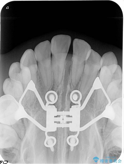 上顎の骨を拡大 抜歯せずに行う八重歯の矯正治療 治療前画像