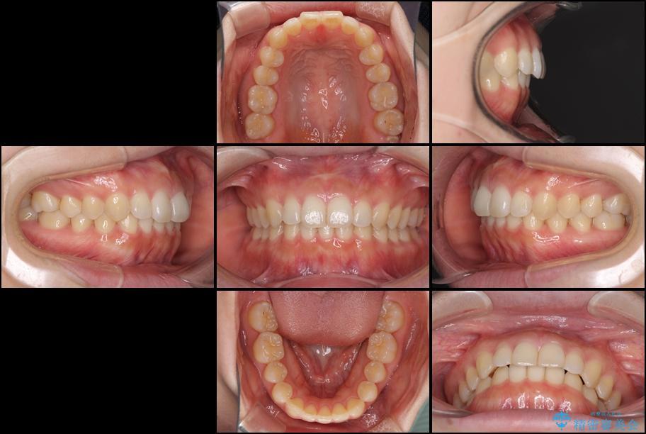 出っ歯を治したい インビザラインによる矯正治療 アフター