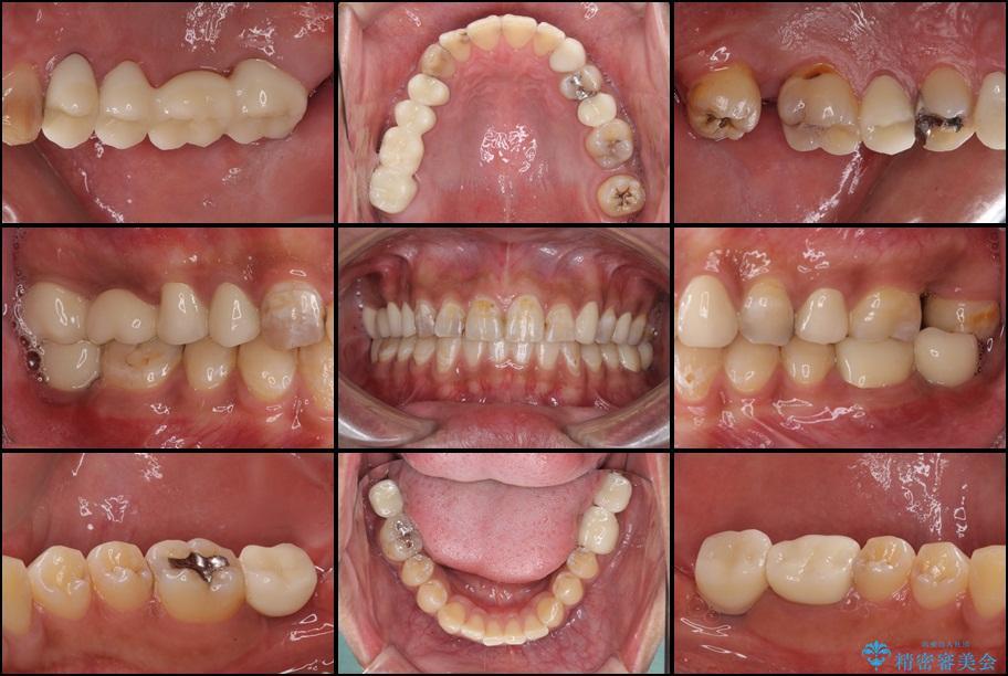 虫歯だらけの奥歯 セラミックやインプラントによる虫歯治療 アフター
