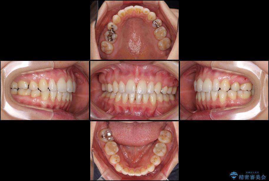 出っ歯を治したい メタル装置による抜歯矯正治療 治療後画像