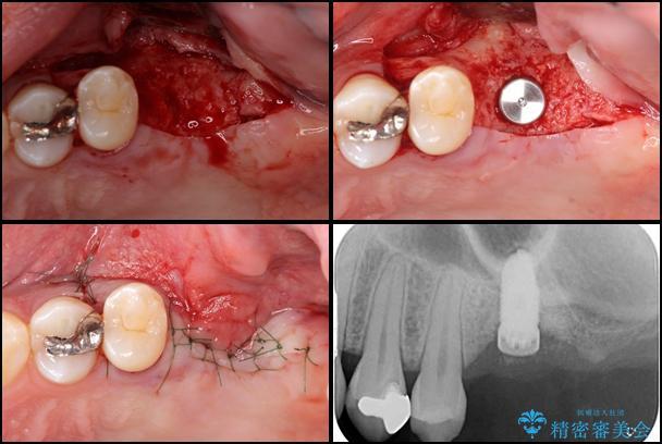 上顎臼歯部におけるインプラント治療 治療前画像