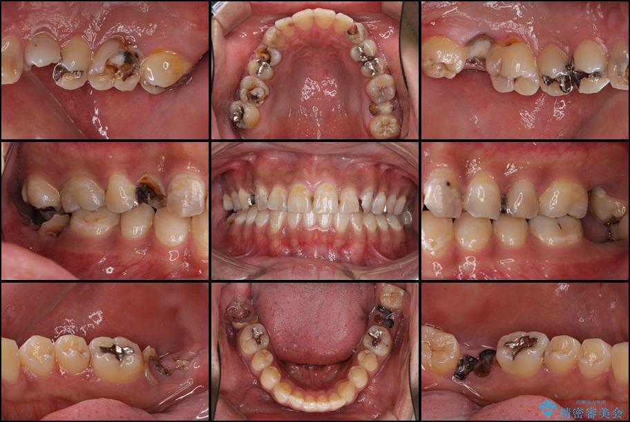 虫歯だらけの奥歯 セラミックやインプラントによる虫歯治療 ビフォー