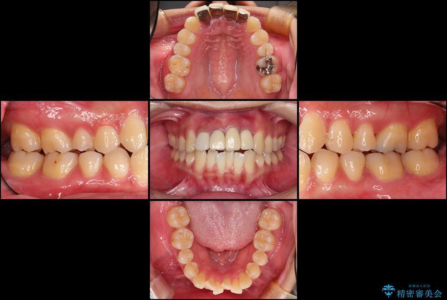 事故で抜けかけた歯 歯が溶けてしまった方の歯茎の再生、ブリッジ治療 治療前画像