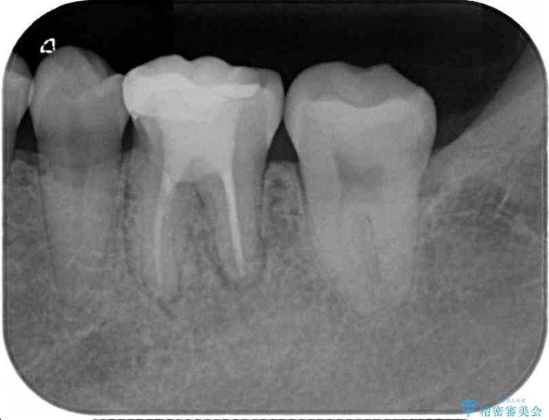 下がった歯茎を改善 歯肉移植による根面被覆 治療前画像