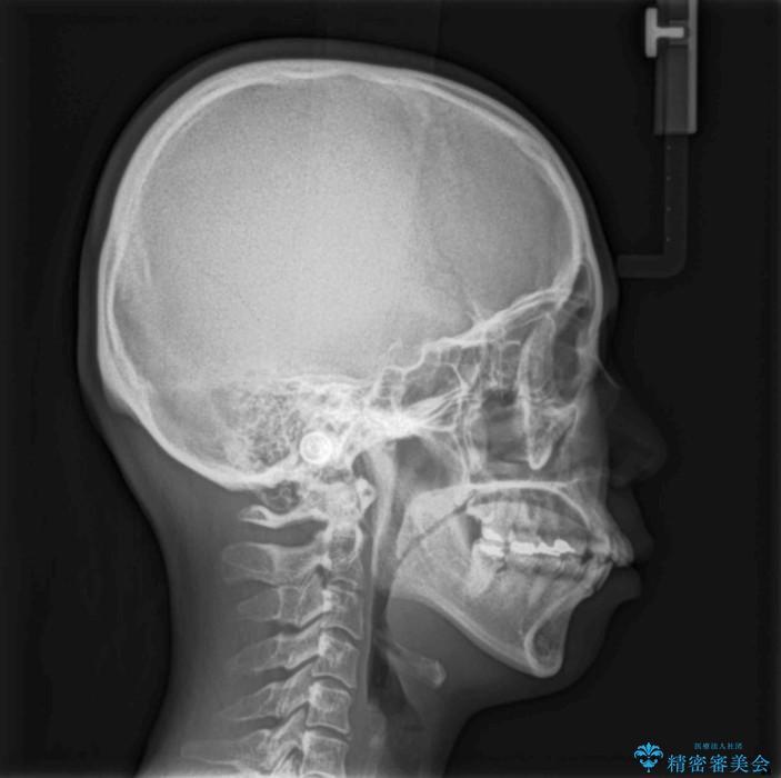 出っ歯を治したい メタル装置による抜歯矯正治療 ビフォー