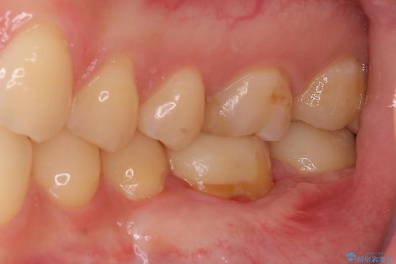 下がった歯茎を改善 歯肉移植による根面被覆 治療後画像