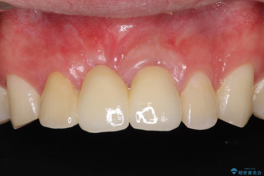 前歯が折れてしまった 歯肉移植を用いた前歯のブリッジ アフター