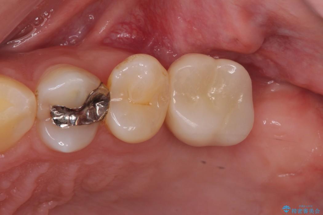上顎臼歯部におけるインプラント治療 アフター