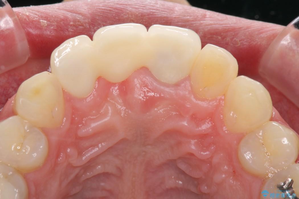 前歯が折れてしまった 歯肉移植を用いた前歯のブリッジ 治療後画像