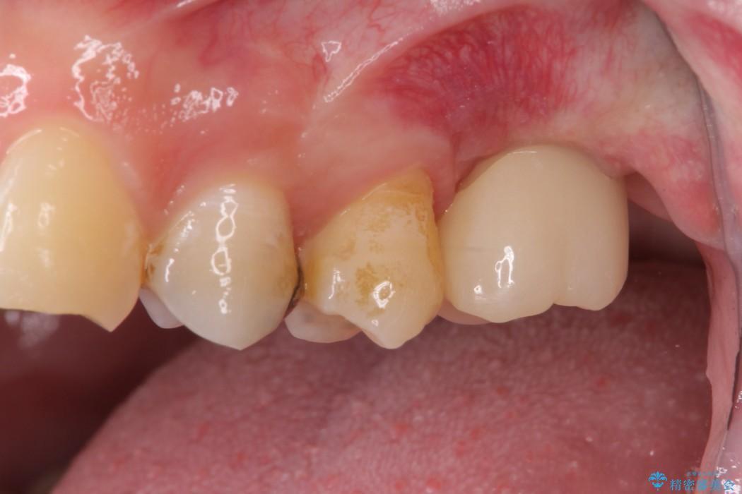 上顎臼歯部におけるインプラント治療 治療後画像
