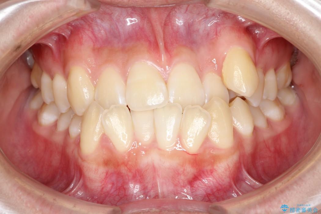 上顎の骨を拡大 抜歯せずに行う八重歯の矯正治療 治療前