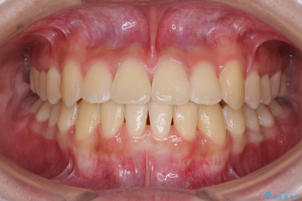 上顎の骨を拡大 抜歯せずに行う八重歯の矯正治療 アフター