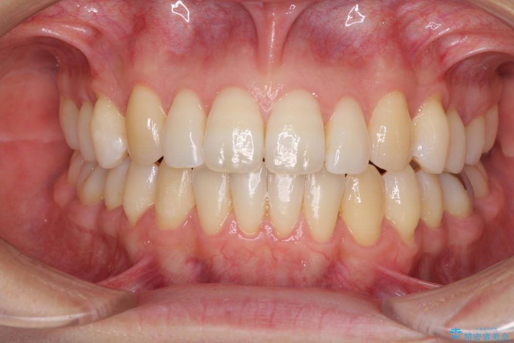 インビザラインによるオープンバイト治療 顎の負担も軽減 アフター