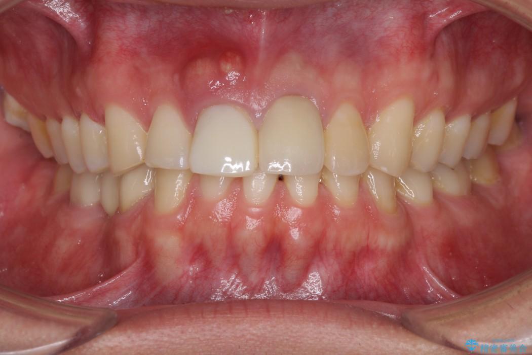 前歯が折れてしまった 歯肉移植を用いた前歯のブリッジ 治療前画像