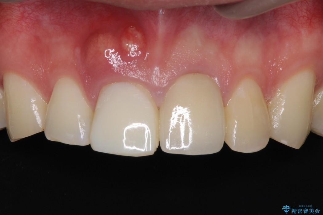 前歯が折れてしまった 歯肉移植を用いた前歯のブリッジ 治療前